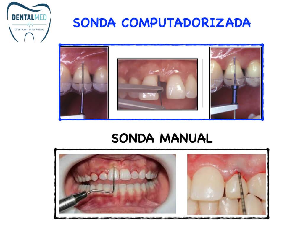 imagem de tratamento - dentalmed